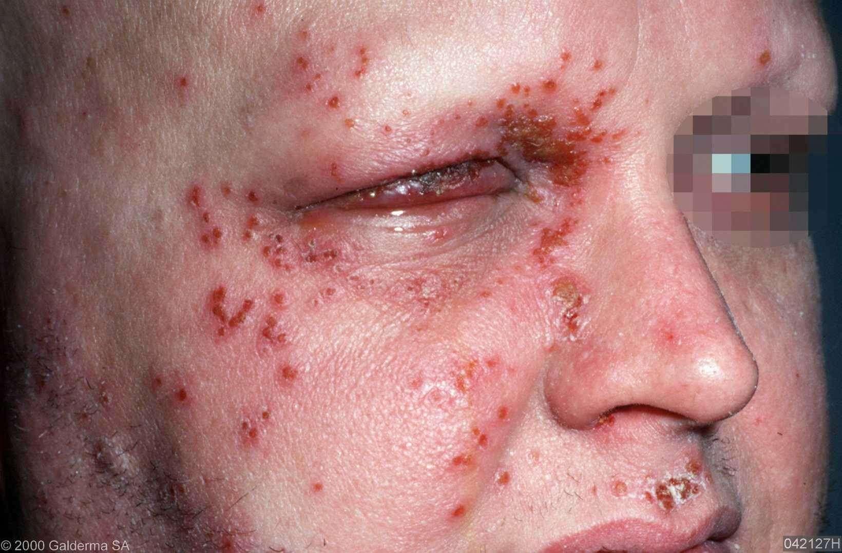 Chicken pox photos infant