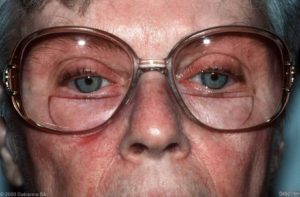 ...blijkt contactallergie voor acrylaten in het brilmontuur