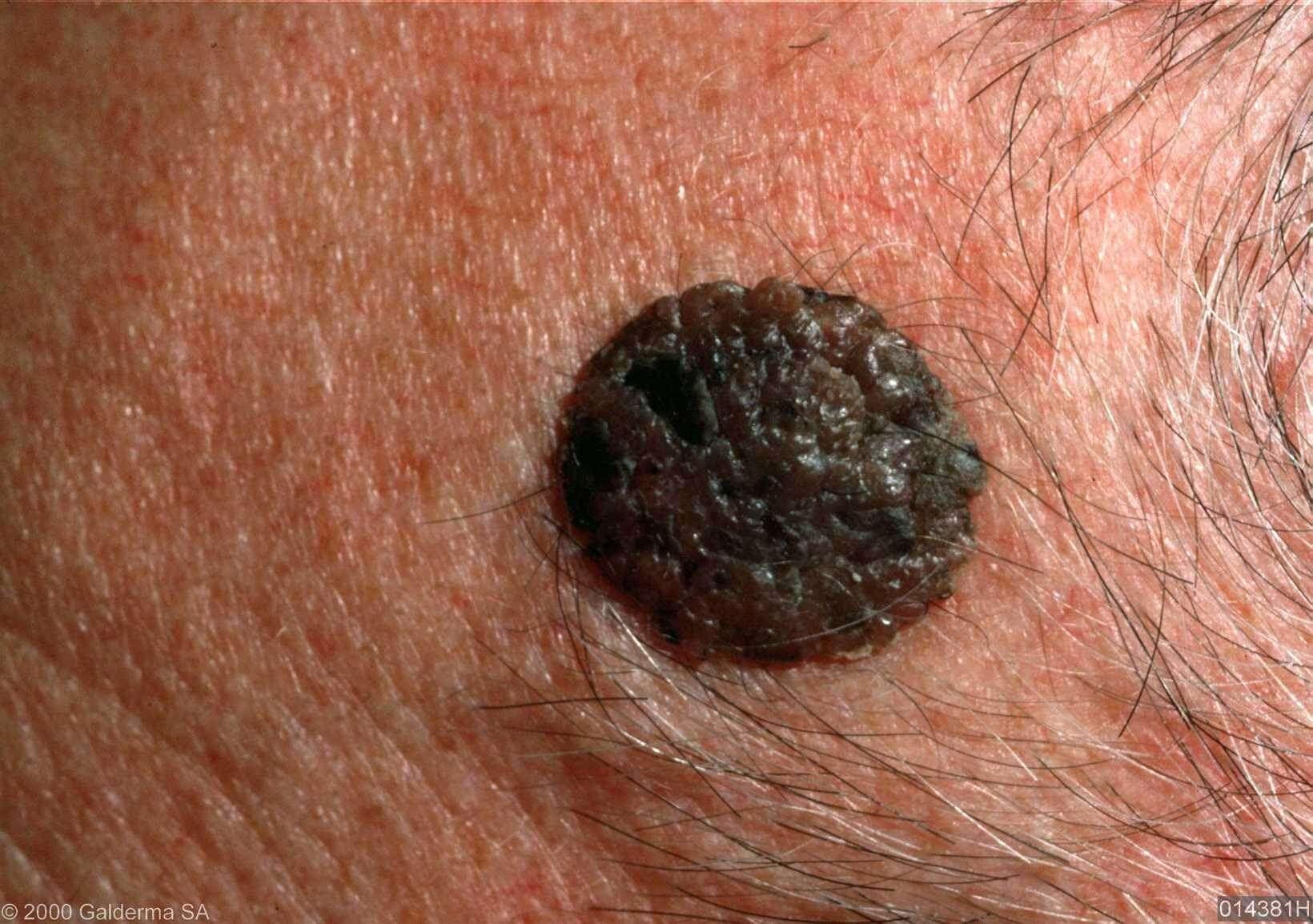 Huidconsult - Dermatosis Papulosa Nigra