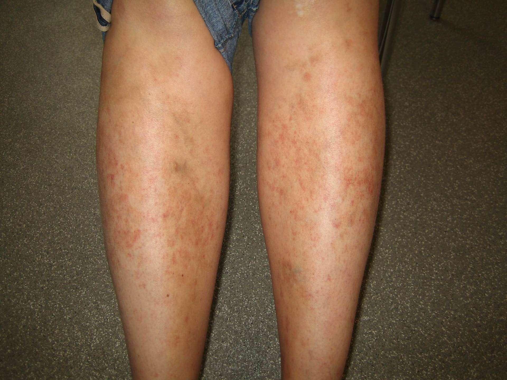 ontstoken haarvaatjes benen