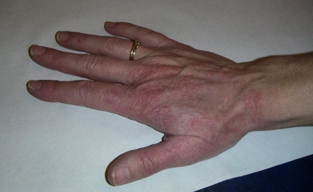 Pin Schimmelinfectie Van De Huid Ringworm Mycose Tinea on Pinterest