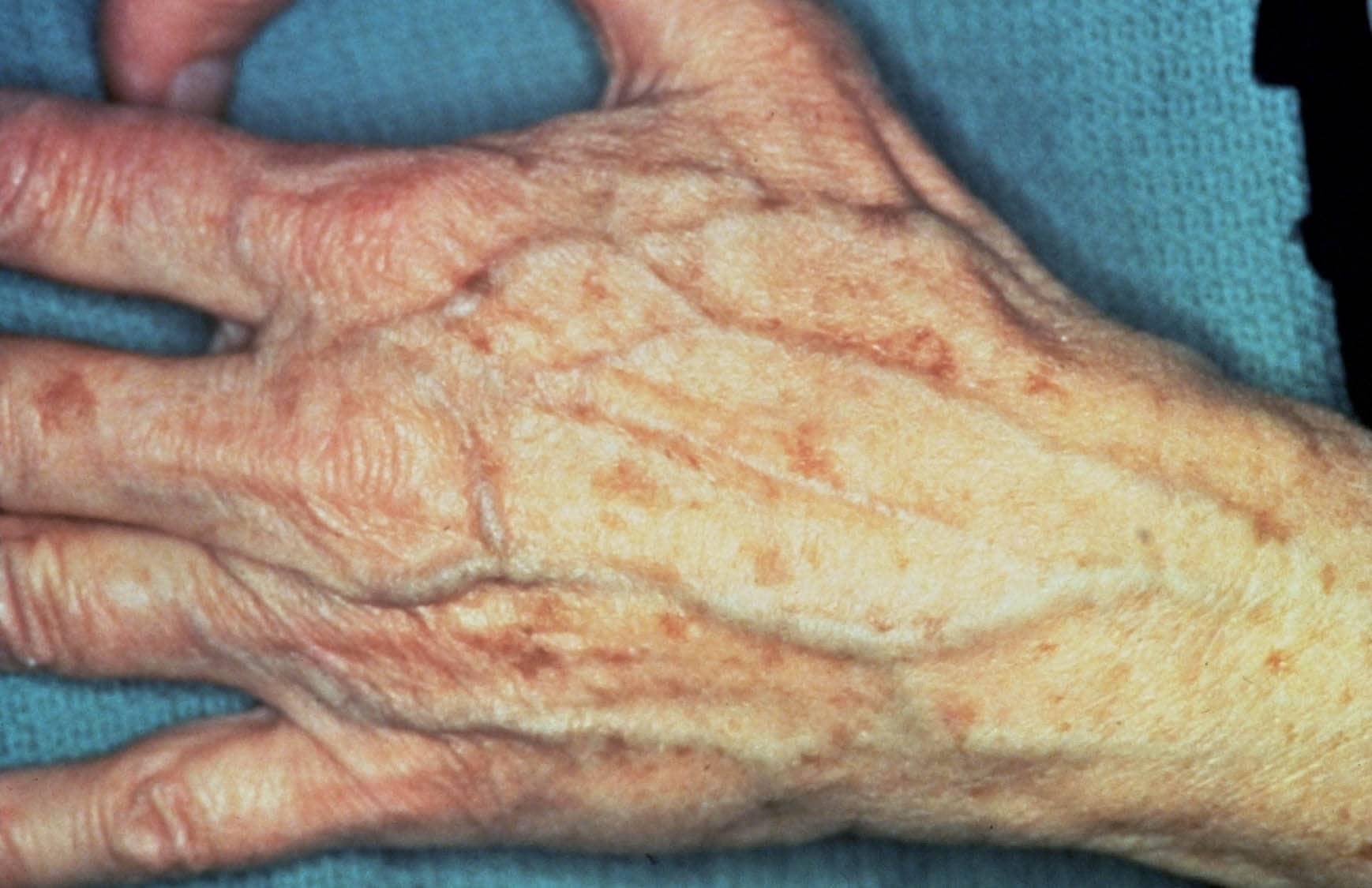 psoriasis en zonnebank