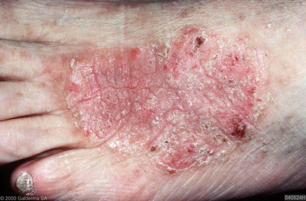 lichens simplex chronicus