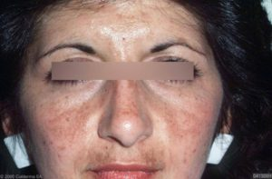 Milde vorm van melasma bij een 38 jarige Arabische vrouw