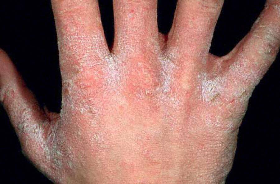 ivermectin scabies #11