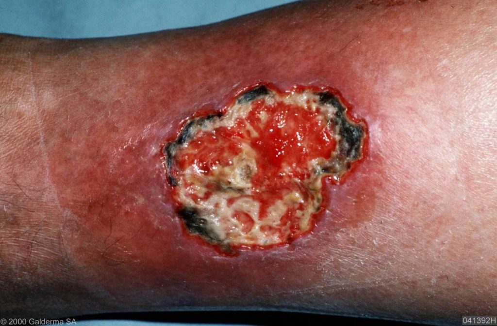 Pyoderma gangrenosum - Wikipedia