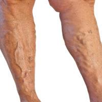 Кои признаци на разширените вени са тревожни и как да подобрим комфорта на краката си? - varicose-veins.dptsarts.com