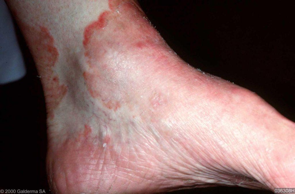 ontstaan schimmelinfectie