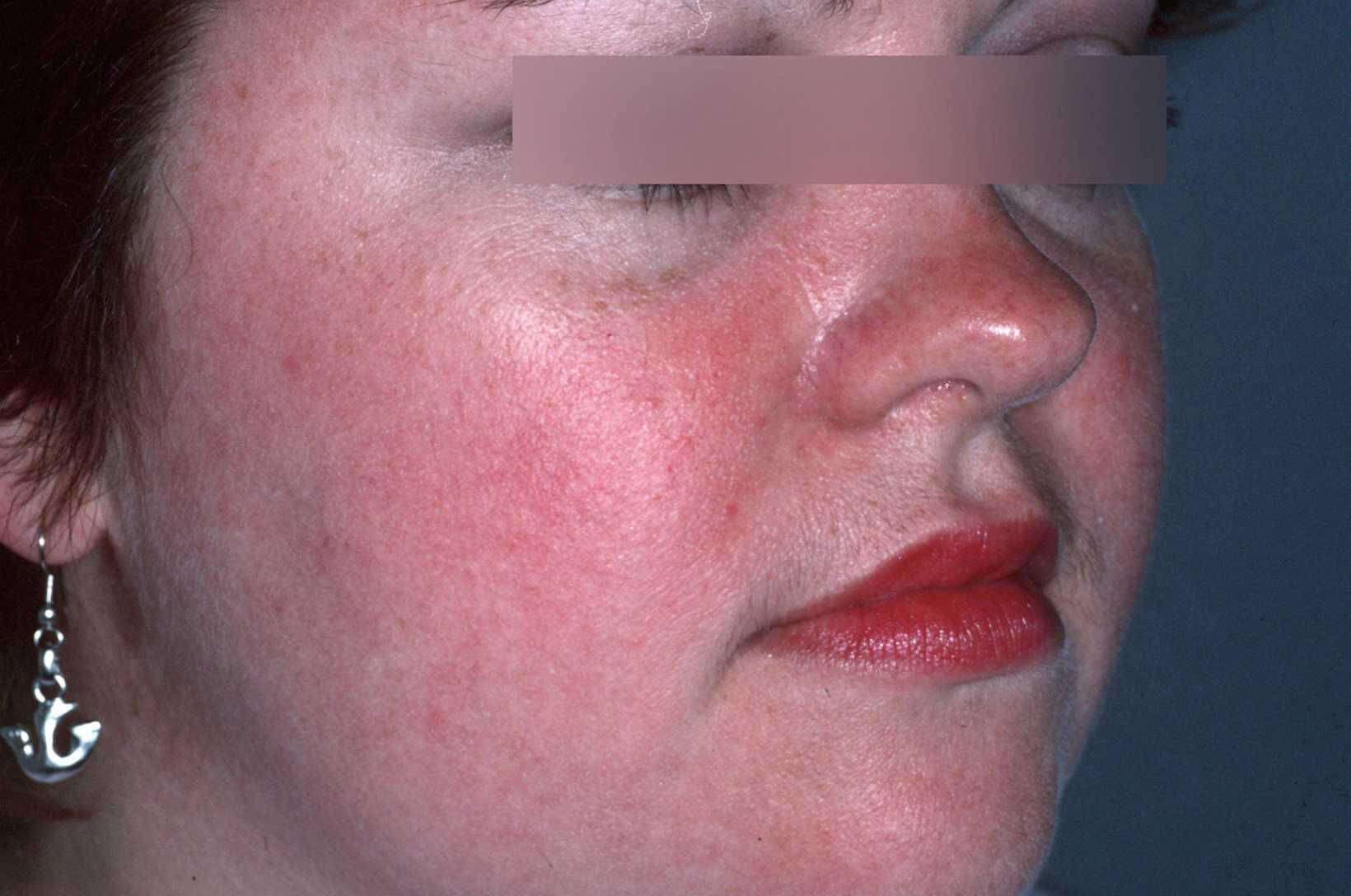 Urticaria Acute Photos - Dermatology Education