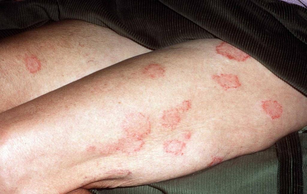 jeuk huid benen