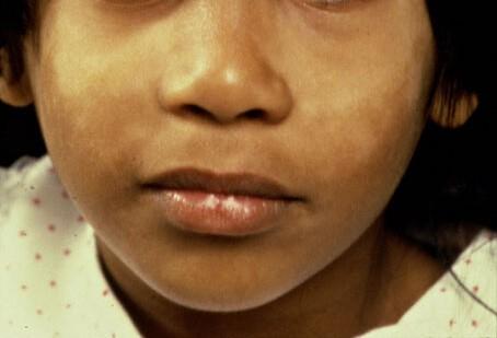 Vitiligo gezicht