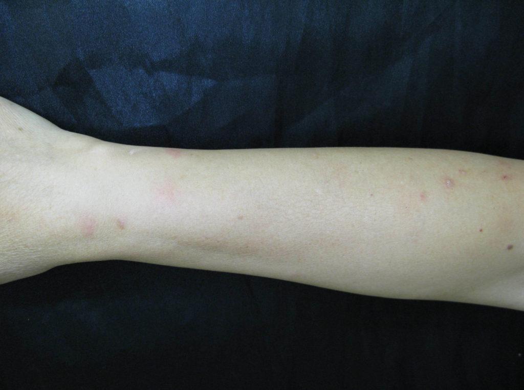 Prurigo parasitaria, typische kleine bultjes aan de onderarmen door vlooienbeten