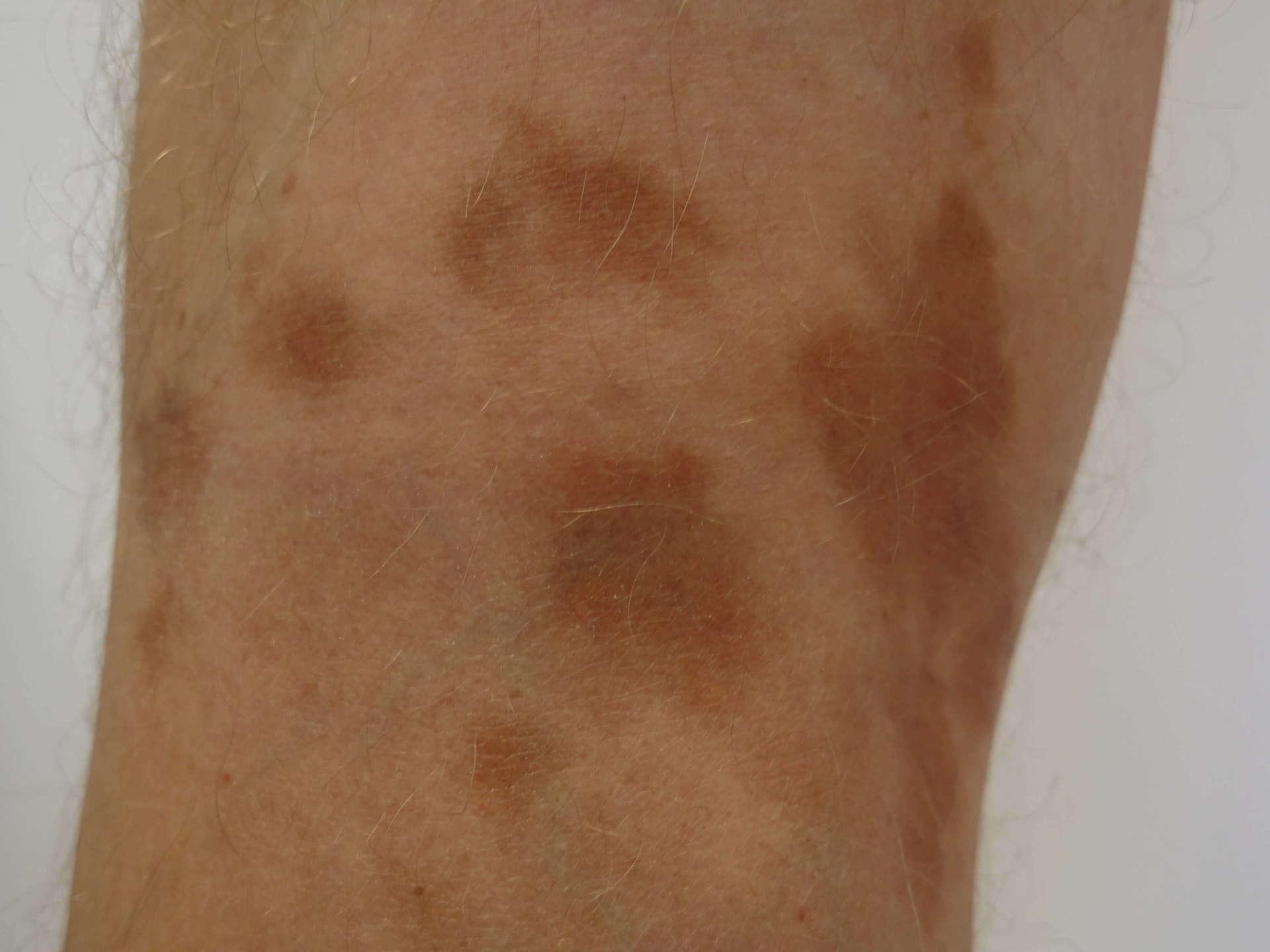https://www.huidarts.com/wp-content/uploads/2014/04/Capillaritis-Roestbruine-verkleuringen.jpg