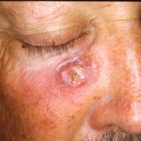 Plaveiselcelcarcinoom - Titel