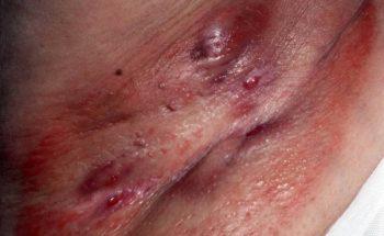 Hidradenitis liezen