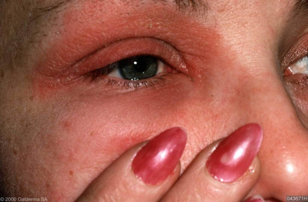 Allergie Planten Huid : Contactallergie huidarts