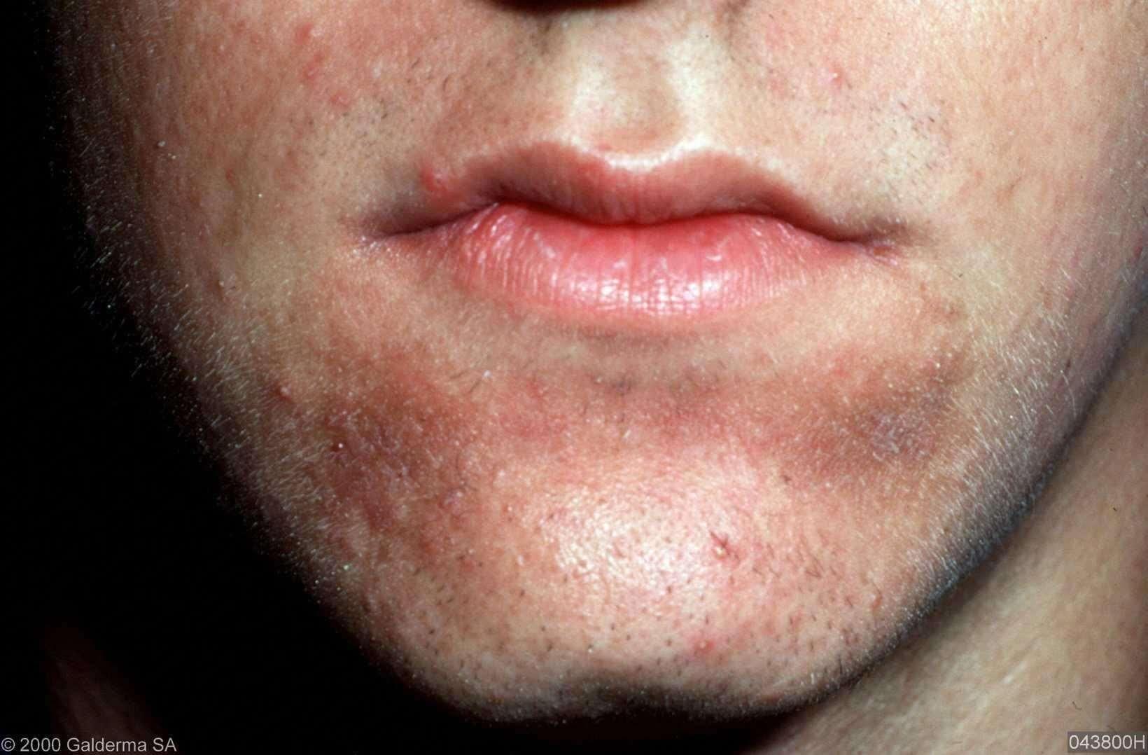 Allergie Planten Huid : Contactallergie huidarts.com