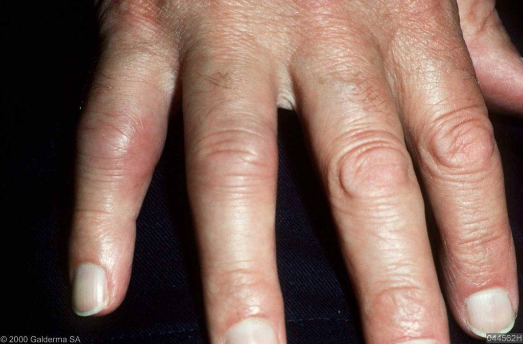 ontsteking gewrichten hand