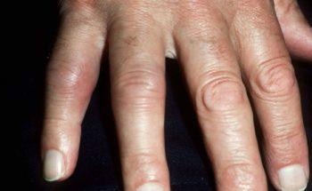 Artritis psoriatica