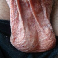 Angiokeratomen op het scrotum