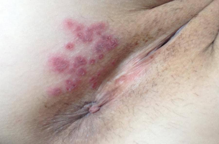 genitel herpes pictures