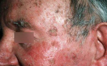 Actinische keratose in het gezicht