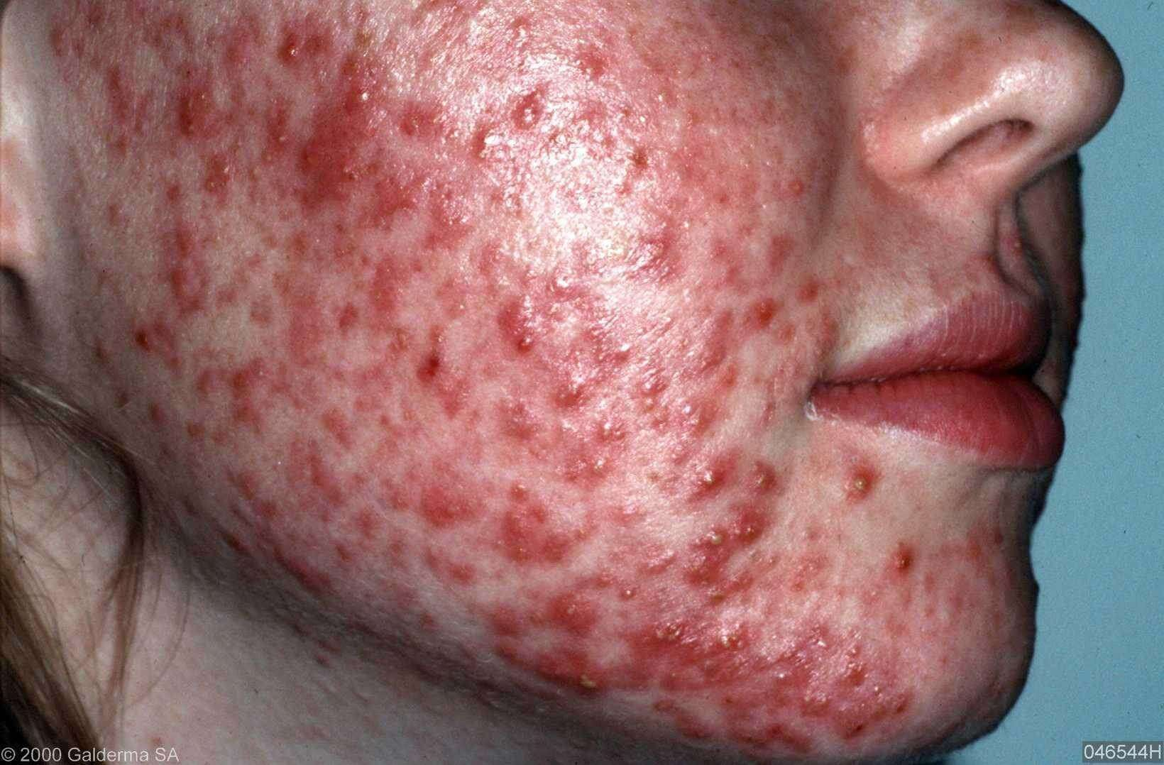 is psoriasis te genezen