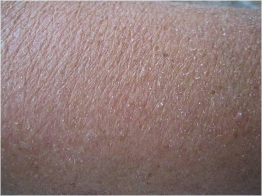 Typisch beeld van een droge huid: ruw, schilfering en wat rood