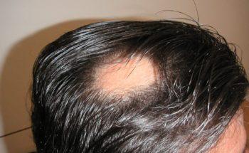 Alopecia Areata - Titel