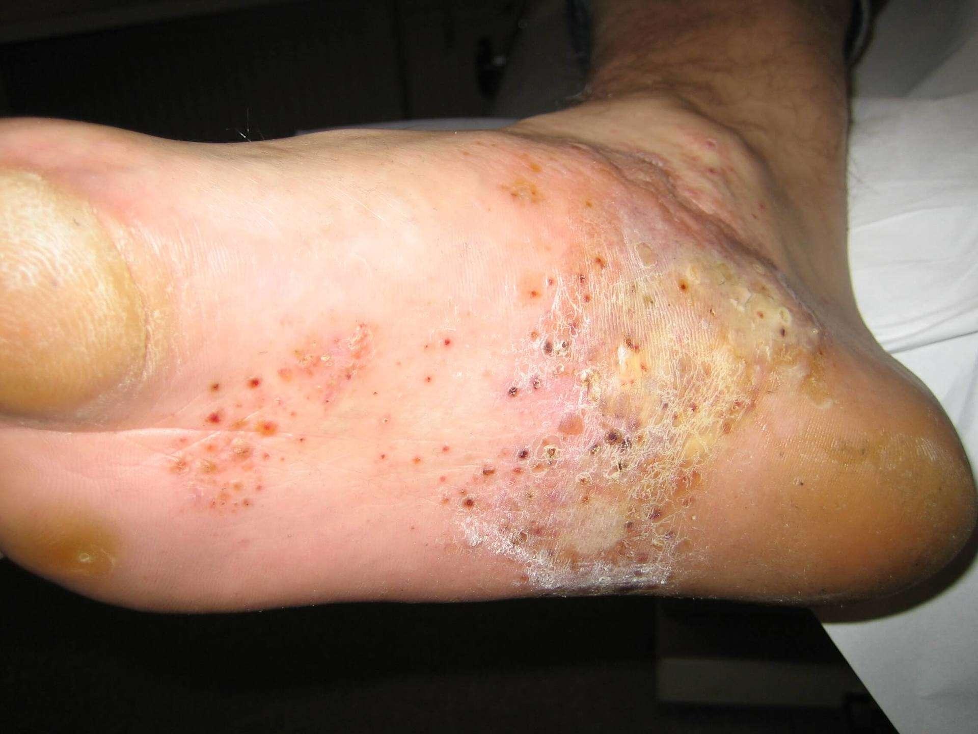 huidaandoeningen handen
