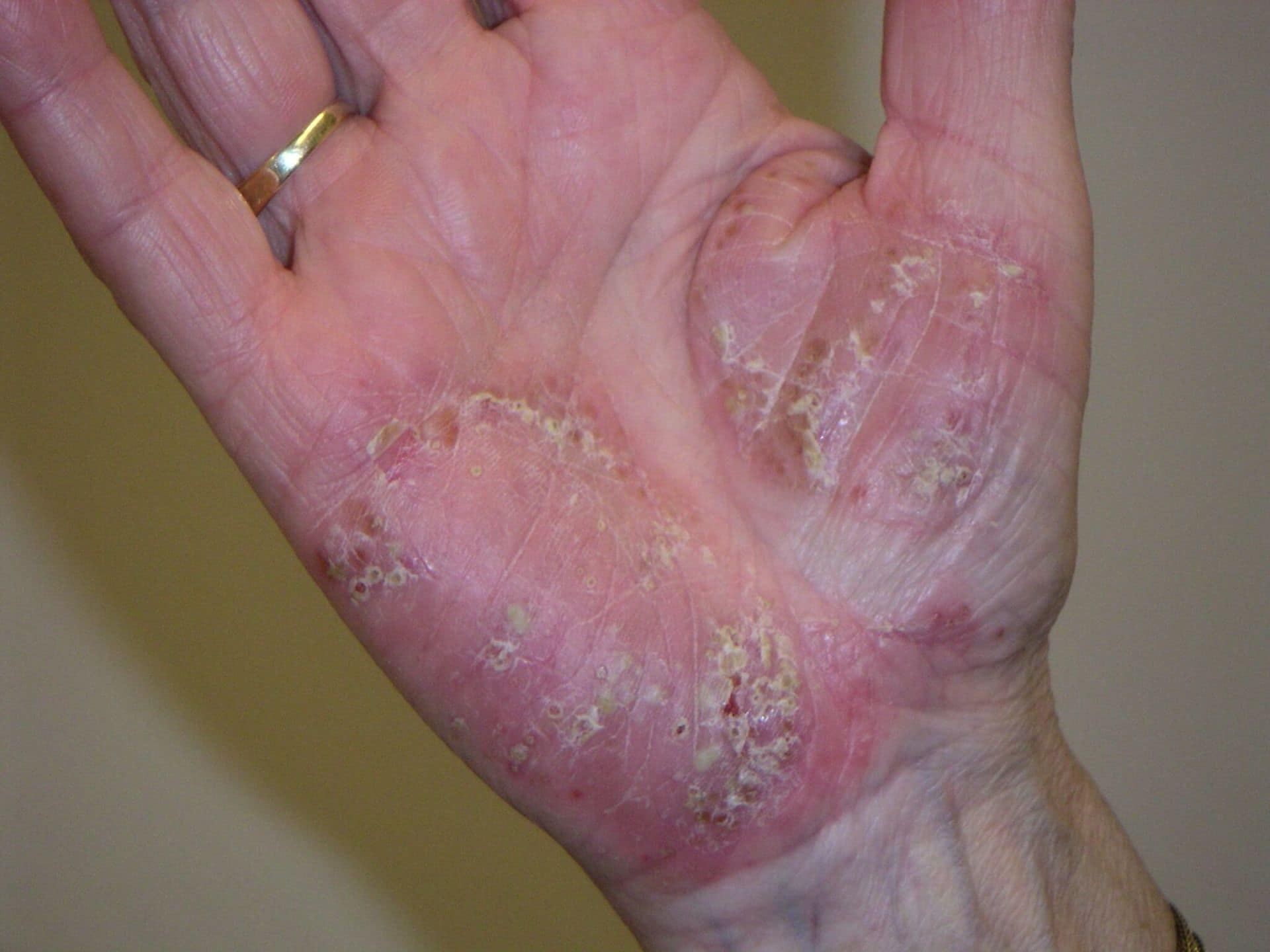 Psoriatic Arthritis Symptoms, Pictures & Diet