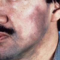 Ashy Dermatosis gezicht