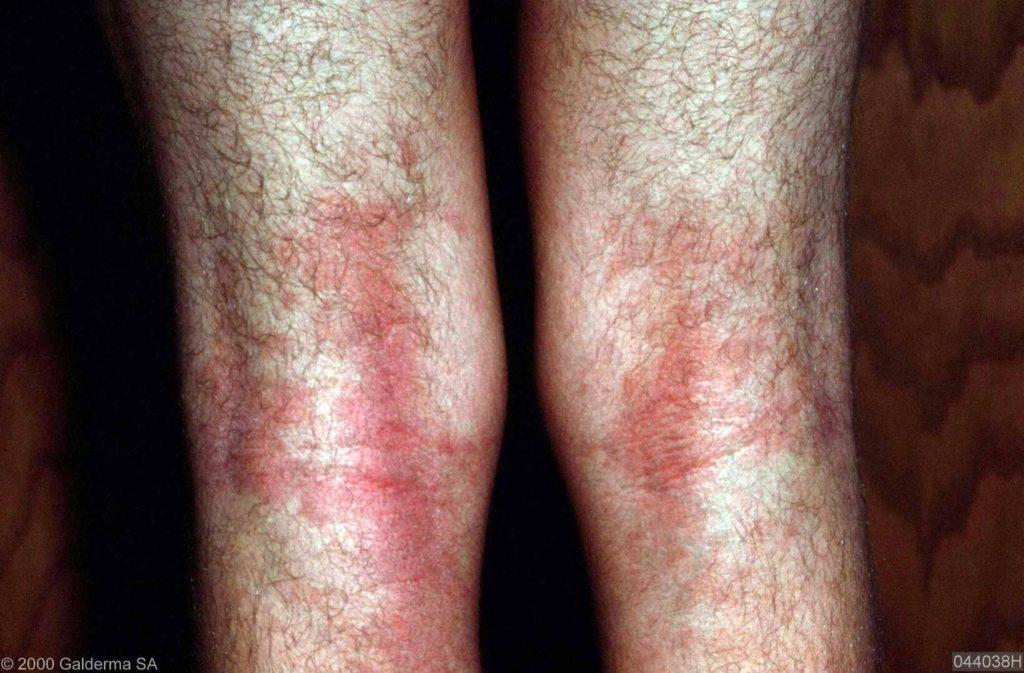 Allergie Planten Huid : Atopisch eczeem constitutioneel eczeem huidarts