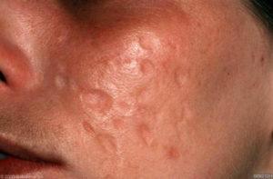 Diepe atrofische acnelittekens op de wang