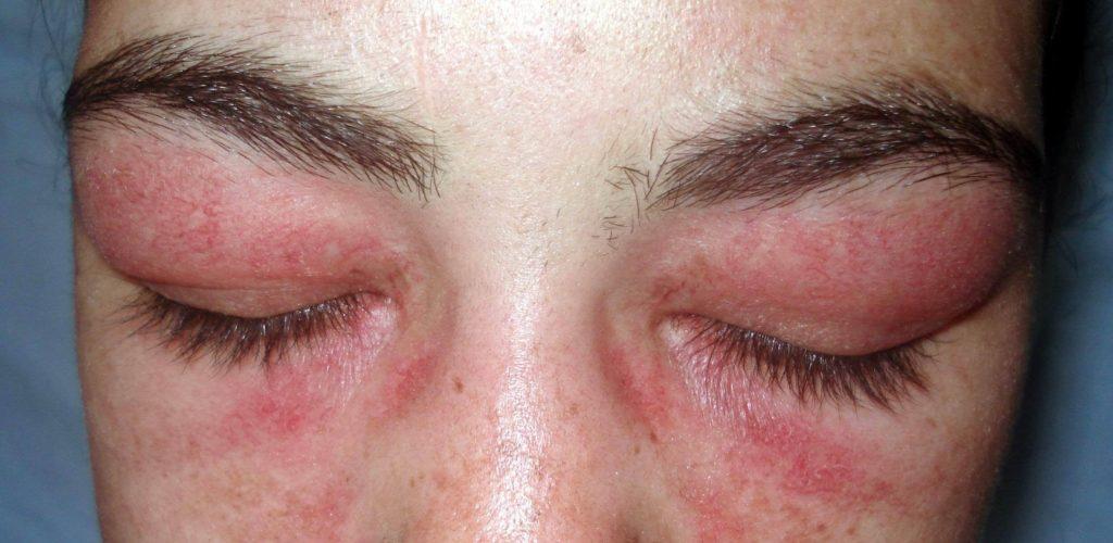 rode vlekken oogleden