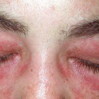 Dermatomyositis - Titel