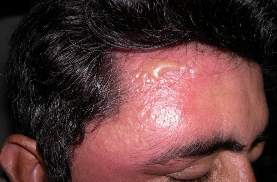 erysipelas besmettelijk