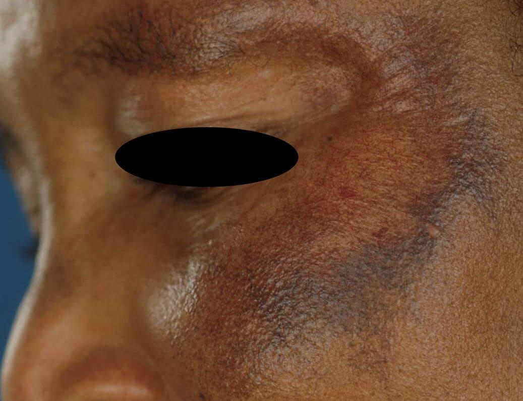 donkere vlekken op huid