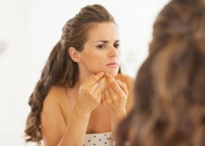 acne bij oudere vrouw