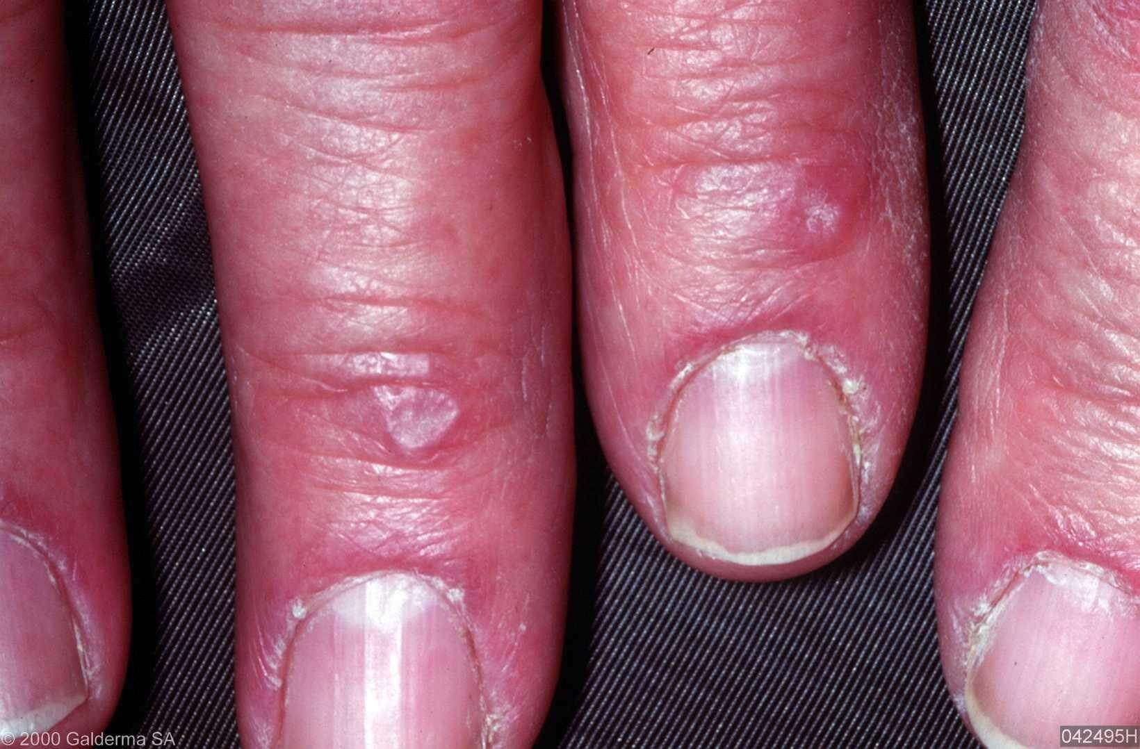 Image Collection: Picture of Erythema Multiforme Minor