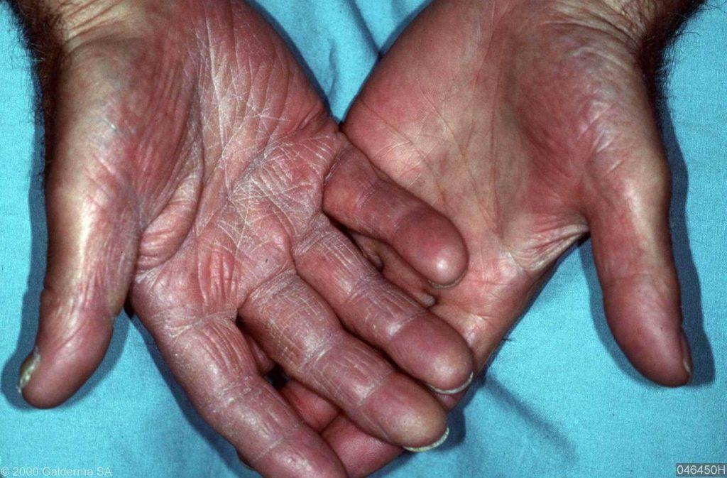 handen van handen