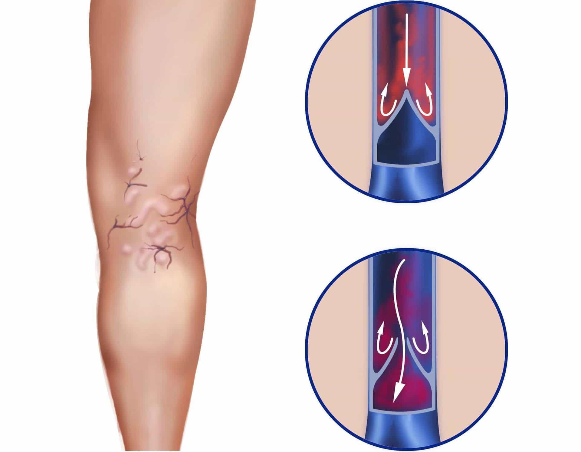 klachten spataderen onderbeen