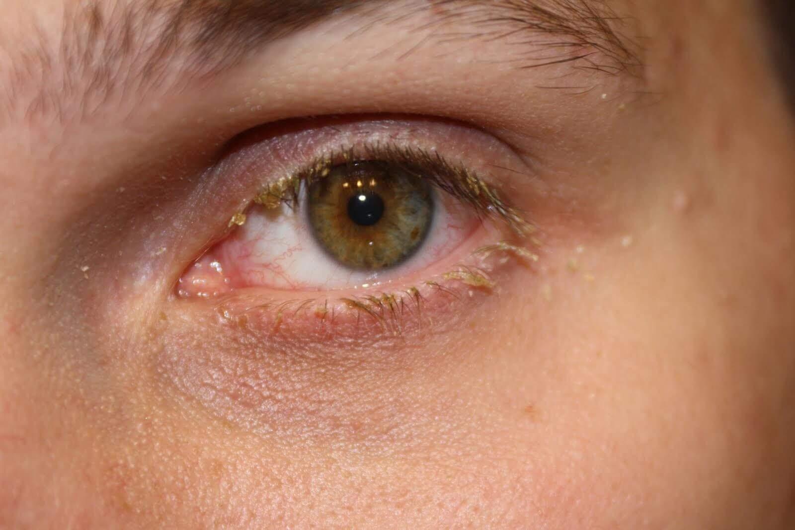 ontsteking ooglid onder