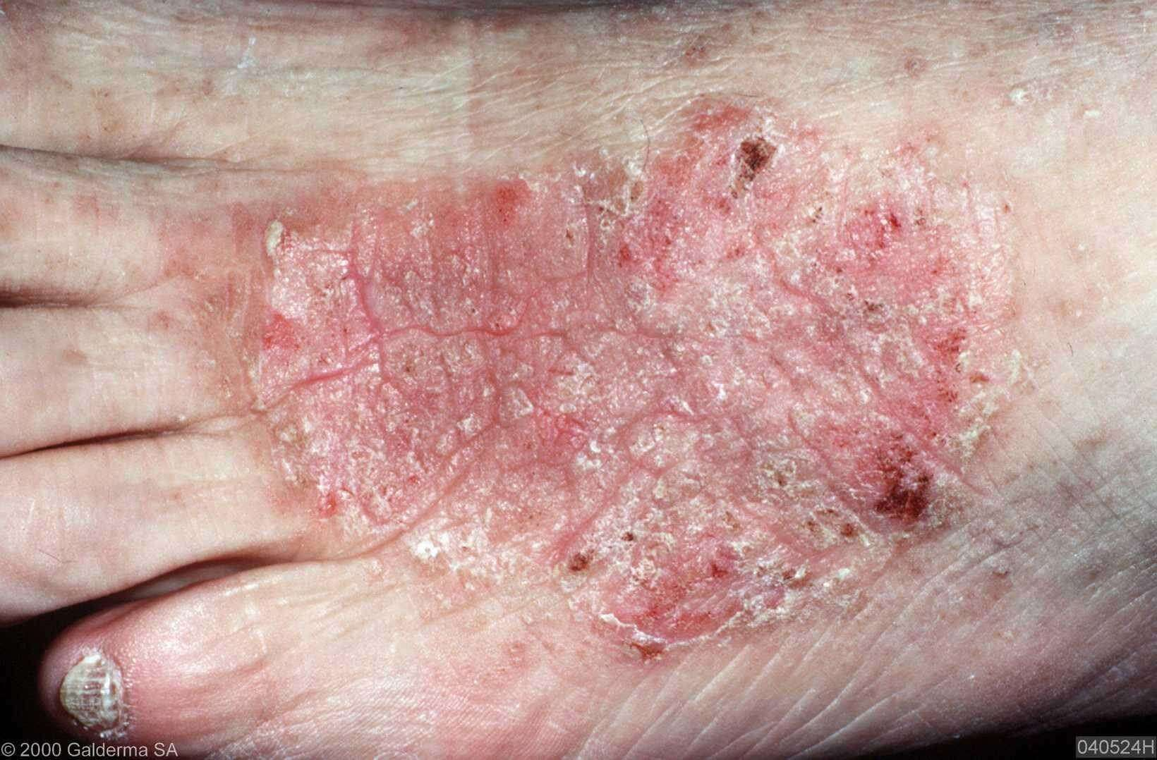 Lichen Simplex Chronicus Treatment … – Medscape Reference