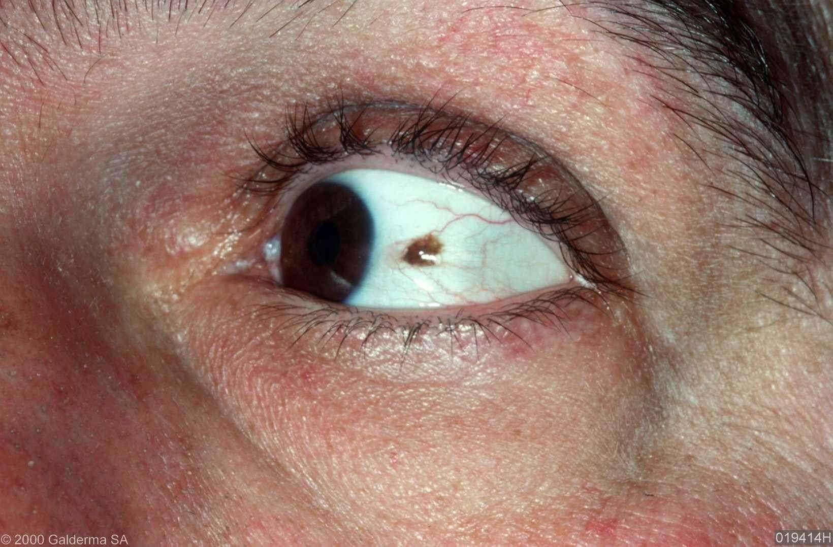 Melanoom in het oogwit