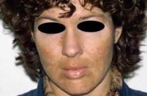 Een 28 jarige blanke vrouw met ernstige melasma in de baardstreek