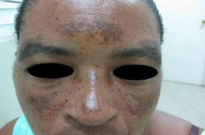 Verspreide grillige bruine vlekken bij een 32 jarige Ghanese vrouw