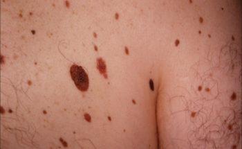 kosten dermatoloog moedervlek