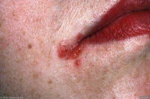 Detailfoto mondhoekeczeem