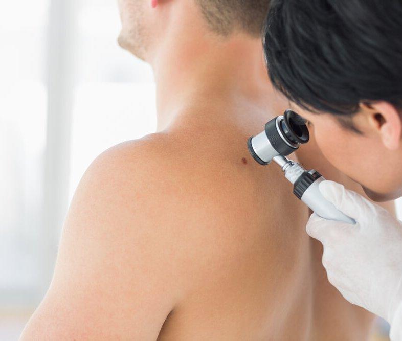 Nieuws - Dunnere melanomen